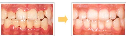 歯周病症例/広島県福山市 審美歯科 インプラント 歯周病治療
