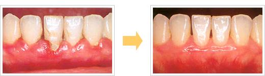 ブラッシング指導症例/広島県福山市 審美歯科 インプラント 歯周病治療