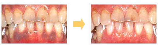 レーザー治療症例/広島県福山市 審美歯科 インプラント 歯周病治療