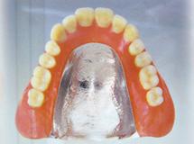 チタン床義歯/広島県福山市 審美歯科 インプラント 歯周病治療