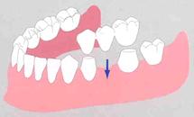 <従来の治療法:ブリッジ>/広島県福山市 審美歯科 インプラント 歯周病治療