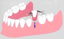 <従来の治療法:取り外し式入れ歯>/広島県福山市 審美歯科 インプラント 歯周病治療