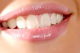審美歯科治療/広島県福山市 審美歯科 インプラント 歯周病治療
