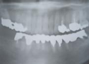 インプラント治療症例3/広島県福山市 審美歯科 インプラント 歯周病治療