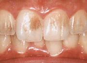 PMTC/広島県福山市 審美歯科 インプラント 歯周病治療