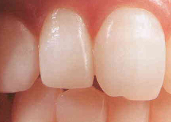 術後/広島県福山市 審美歯科 インプラント 歯周病治療