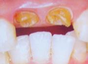 硬質レジン前装冠/広島県福山市 審美歯科 インプラント 歯周病治療